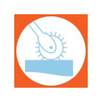 Trasplante Capilar (Técnica FUE – FUSS)