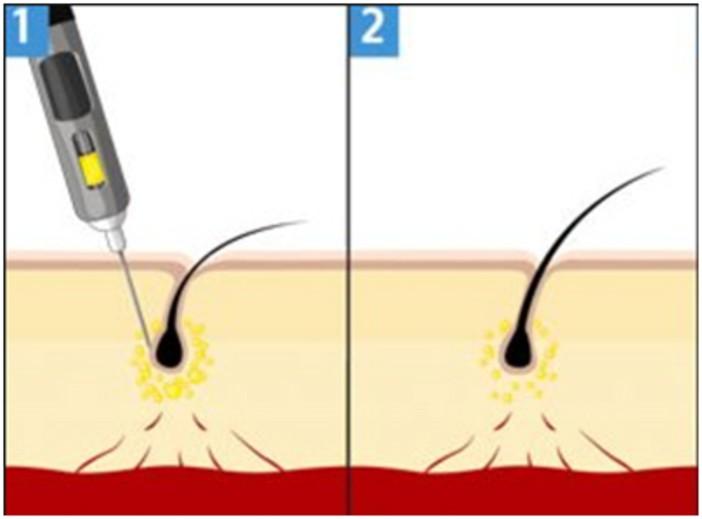 Mesoterapia Capilar Con Dutasteride Dermatoclinic